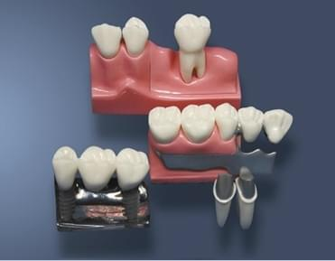 MDO-59 - Rekonstrukce odnímatelné částečné zubní protézy a implantátů