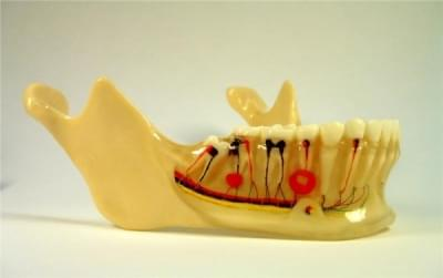 MDO-04 - Implantáty