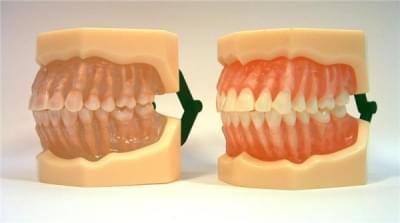 MDO-07 - Vyjímatelné anatomické zuby