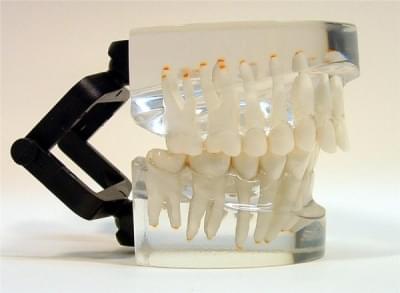 MDO-13 - Ortodoncie - třída II - div. 1