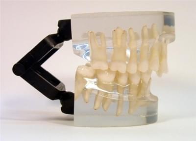 MDO-14 - Ortodoncie - třída II - div. 2