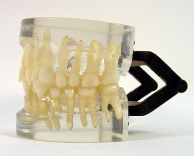 MDO-15 - Ortodoncie - třída I - shlukování