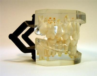 MDO-16 - Ortodoncie - neúplný skus