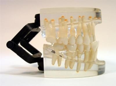 MDO-17 - Ortodoncie - třída III