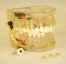 MDO-42 - Model s vyjímatelnými zuby