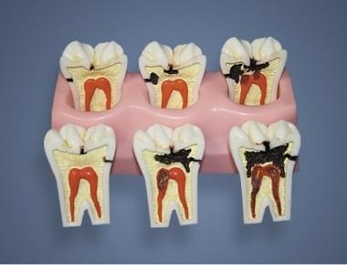 MDO-58 - Stádia zubního kazu