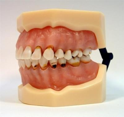 MDO-27 - Zubní kazy