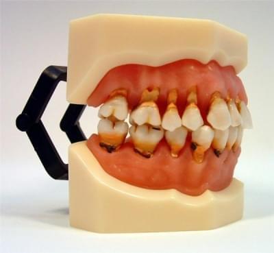 MDO-28 - Zánět dásně