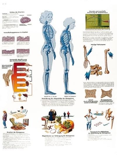 VR1121L - Osteoporóza