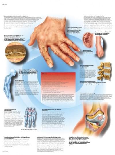 VR1124L - Revmatické onemocnění