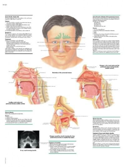 VR1251L - Rýma a zánět nosních dutin