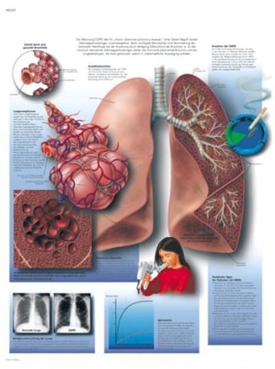 VR1329L - Chronické onemocnění pulmonální obstrukce