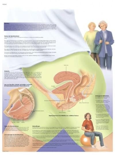 VR1542L - Ženská urinální inkontinence