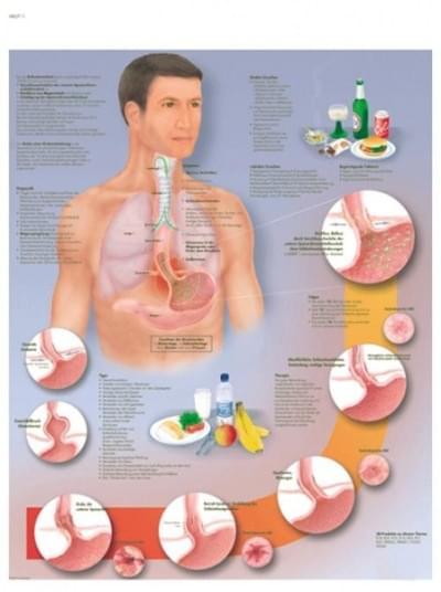 VR1711L - Gastroezofageální onemocnění