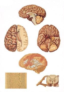 V2034U - Centrální nervový systém