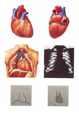 V2053U - Lidské srdce