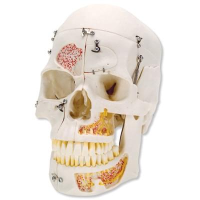 A27 - Luxusní model lidské lebky pro ukázku uspořádání zubů, 10 částí