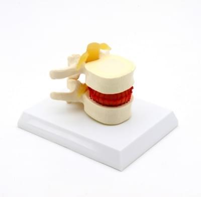 GD1501 – Simulátor vertebrální diskopatie