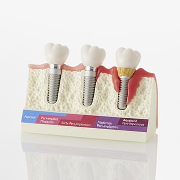 Onemocnění dásní v okolí implantátu