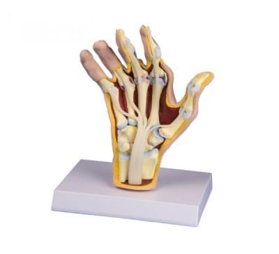 M26 - Model ruky s revmatoidní artritidou