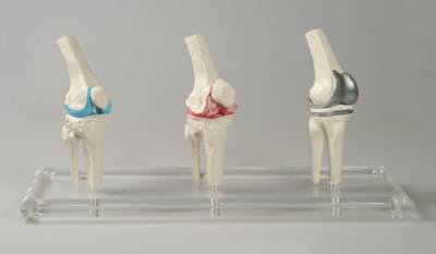1125 - Model kolenního implantátu
