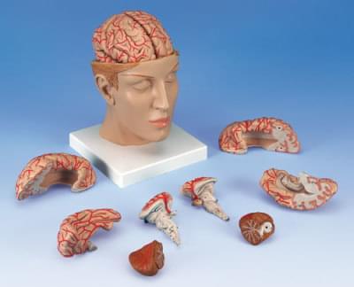 C25 - Mozek s tepnami v hlavě
