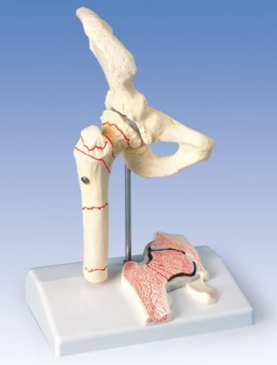 A88 - Stehenní zlomenina a kyčelní osteoartritida
