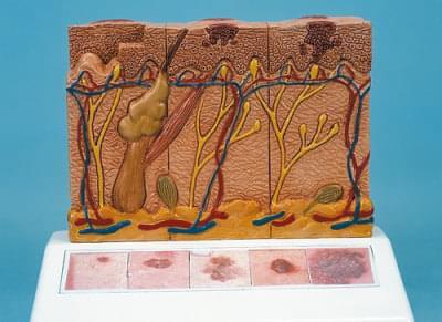 J15 - Model rakoviny kůže