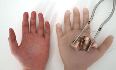 HANDACT - Chirurgický simulátor ruky