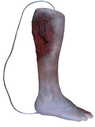 R50010 - Model nohy s vážným poraněním, od kolene dolů