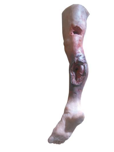 R50020 - Model nohy s vážným poraněním, celá noha